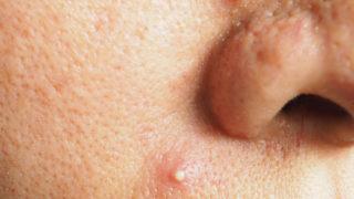 鼻の下のニキビのスピリチュアルな意味って?鼻の下のニキビのジンクス